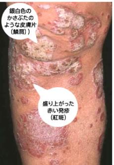 Vol.5 皮膚の病気乾癬 No.1 ~根...